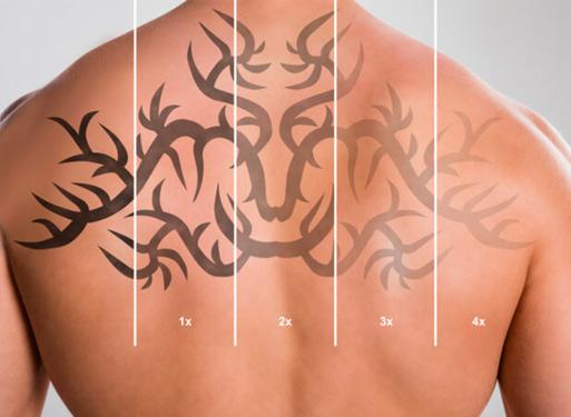 Tattoo Removal Milton Keynes